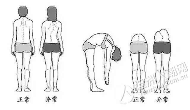 坦洲家长一定要注意及时纠正孩子的不良姿势,中山一孩子脊柱竟弯了60度!
