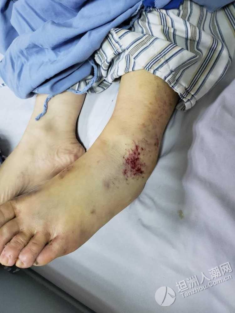 【求扩散】寻找目击证人:龙塘花坛一大货车碰倒电动车后逃逸,伤者左腿骨折